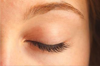 Eyelid Care